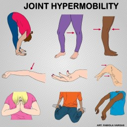 Examples of hypermobility