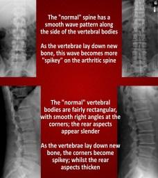 Osteoarthritis seen on X-Ray