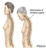 Kyphosis - An image of a normal spine and an image showing deterioration to accompany the blog written by Eastbourne Doctor of Chiropractic Deborah Ben-Shah