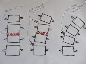 Diagram showing three drawings of the spine. Drawing one demonstrates a restricted joint within the spine. Drawing two demonstrates that it is normally the segment above or below the stiff joint that causes the clicking and popping sound when you click or pop the spine yourself. Drawing demonstrates that with a chiropractic adjustment the restricted joint is targeted and therefore is the joint that makes the sound in this case.
