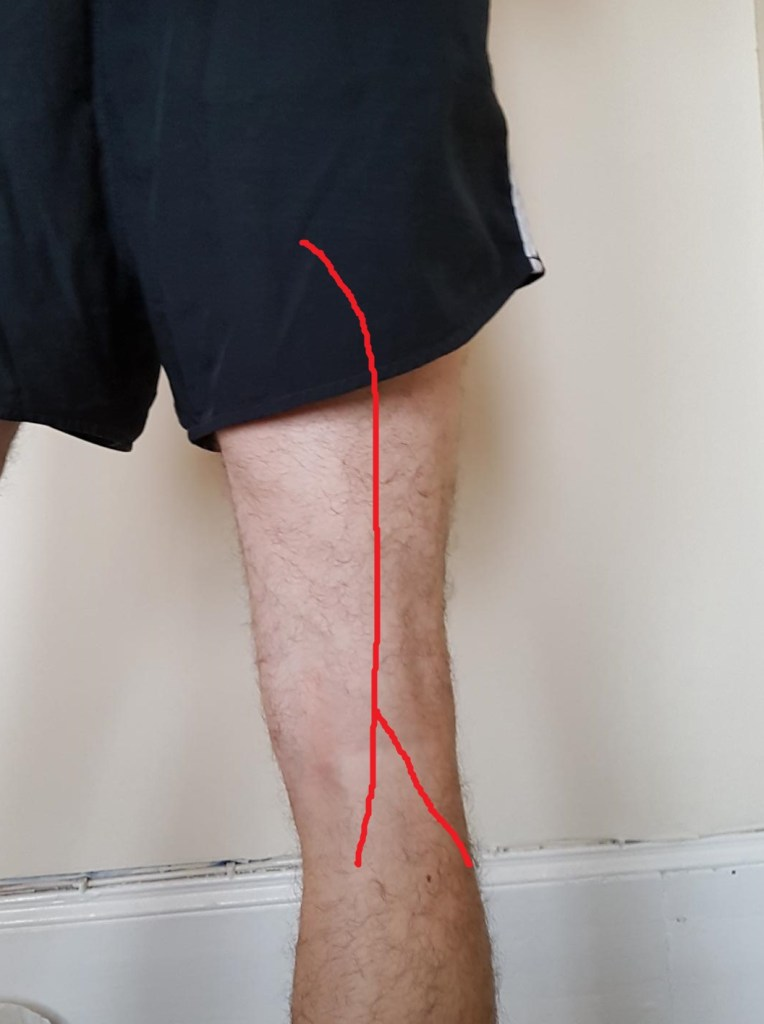 The image shows the back of a man's leg with a line drawn on it showing where the sciatic nerve runs, to accompany the blog on sciatic nerve written by Eastbourne Chiropractor Mykel Mason