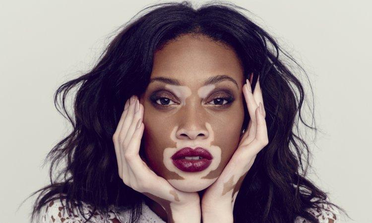 web mjesta za upoznavanje vitiligo besplatne aplikacije za upoznavanje Australija
