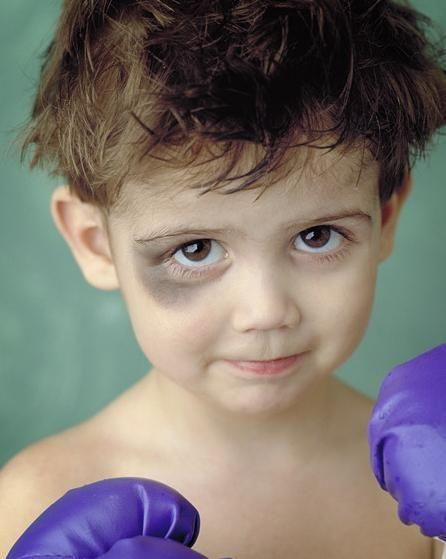 poor kid with quite a shiner from boxing