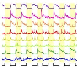 Light-driven calcium in bipolar cells