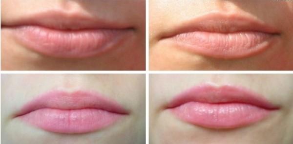 buzele înainte și după pierderea în greutate