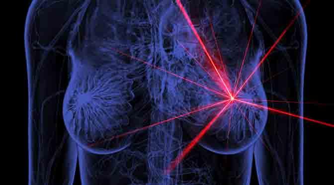 Investigadores del Conicet desarrollan mamografías sin rayos