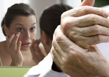 health-3-warning-signs-of-high-cholesterol-on-the-skin-hands-and-eyes
