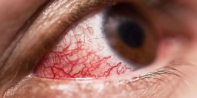 eyes-and-mucormycosis-what-causes-mucormycosis-learn-what-to-look-for-and-tactics-to-help-ease-the-way-from-ophthalmologist-dr-kshitija-panditrao-kasture