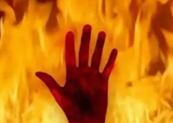 Pune Crime Death of a person who set fire to the gate of Pune Police Commissionerate