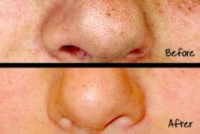 before after 2-large