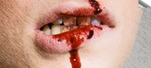 bibir berdarah