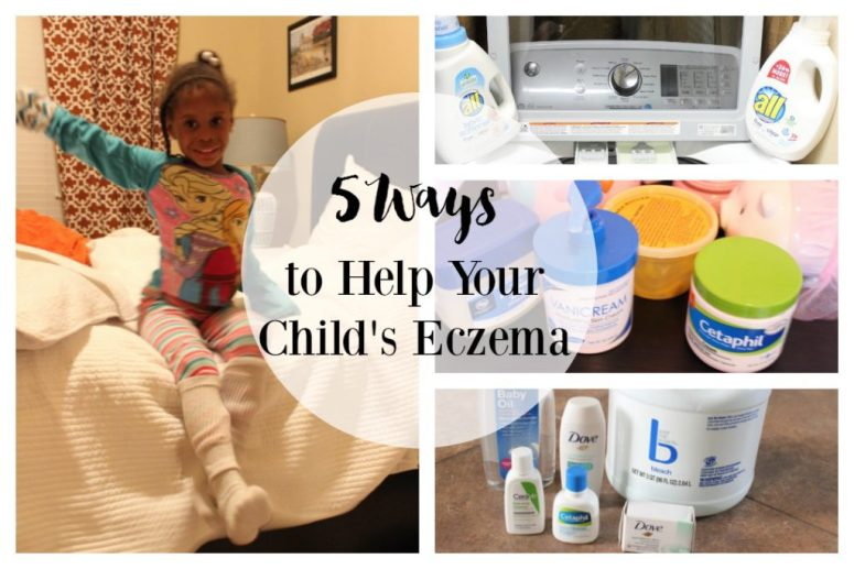 how to help child eczema