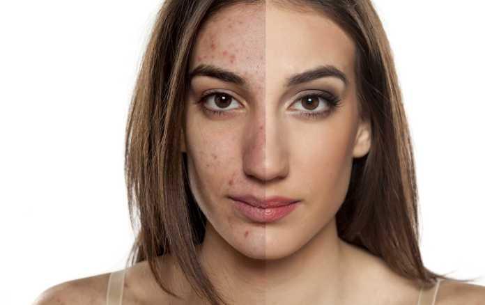 La mejor dieta y suplementos para el acné hormonal