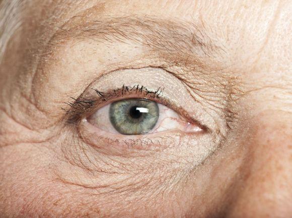 sindrome macular