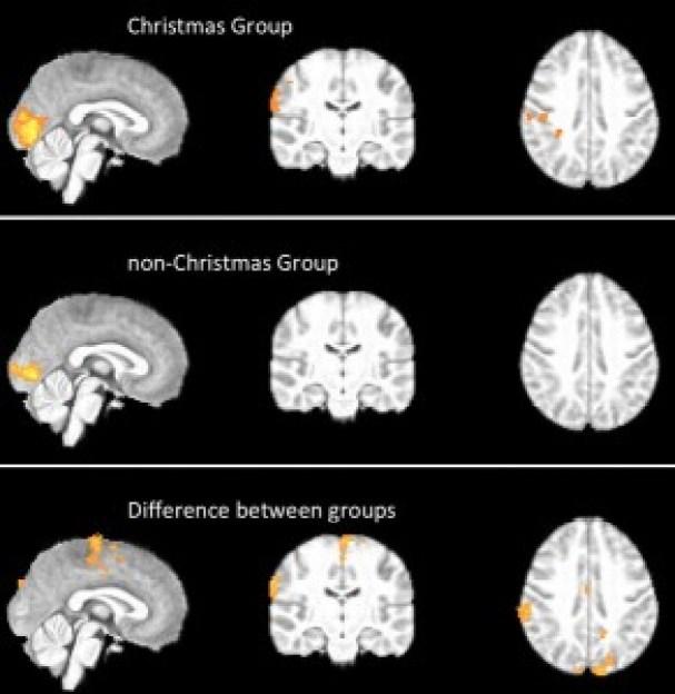 cerebro navidad