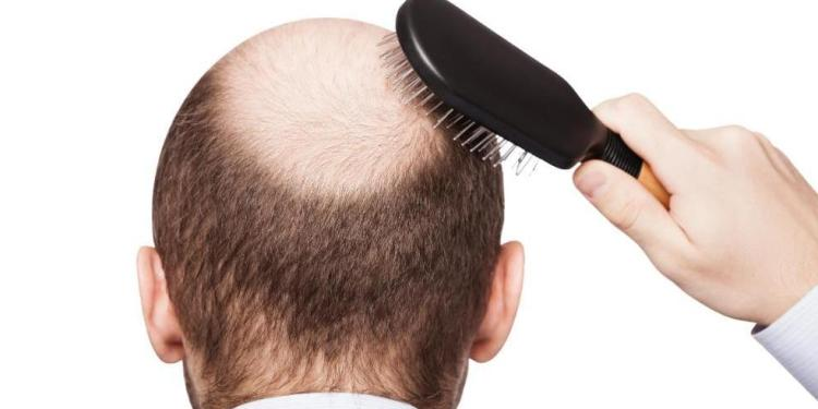 Científicos italianos propnen técnica para curar la calvicie 1