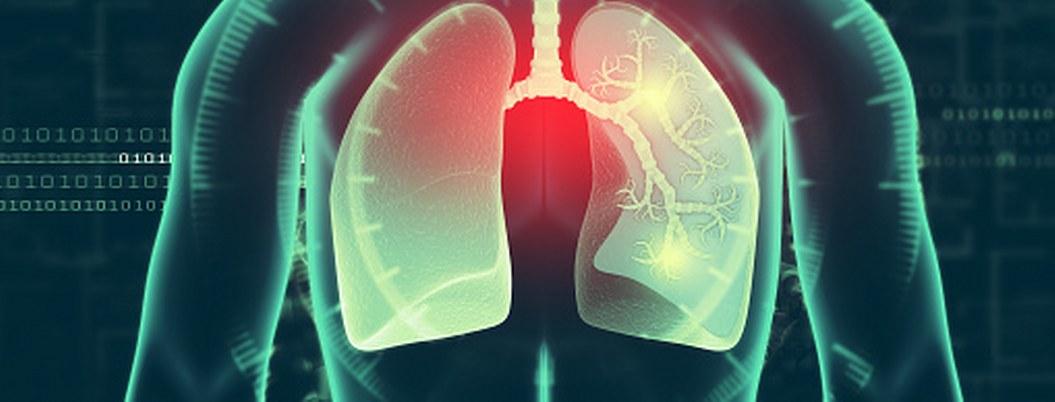 ¿Cómo diferenciar el asma de otros padecimientos?