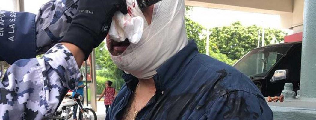 Hombres se pelean en plaza, uno termina con desarmador en el ojo  VIDEO