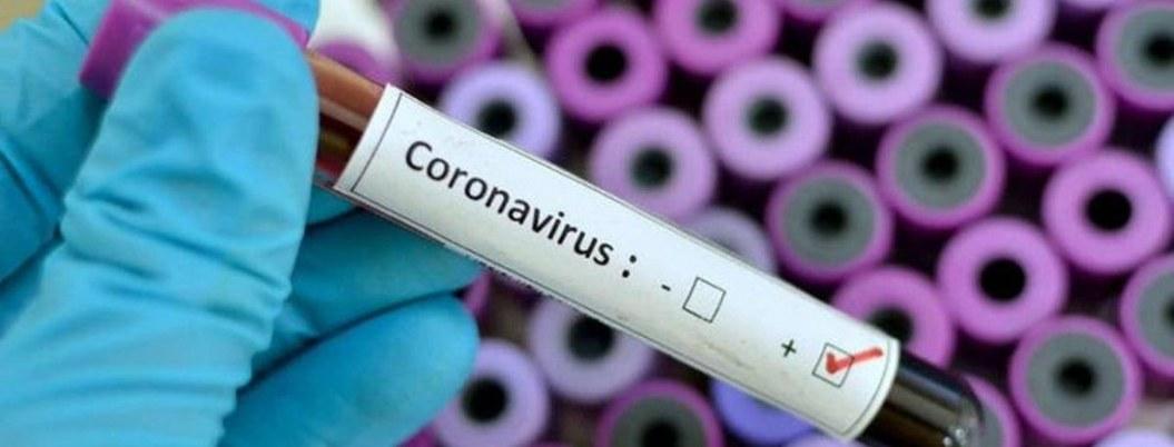 Detectados siete tipos de coronavirus en diversas partes del mundo