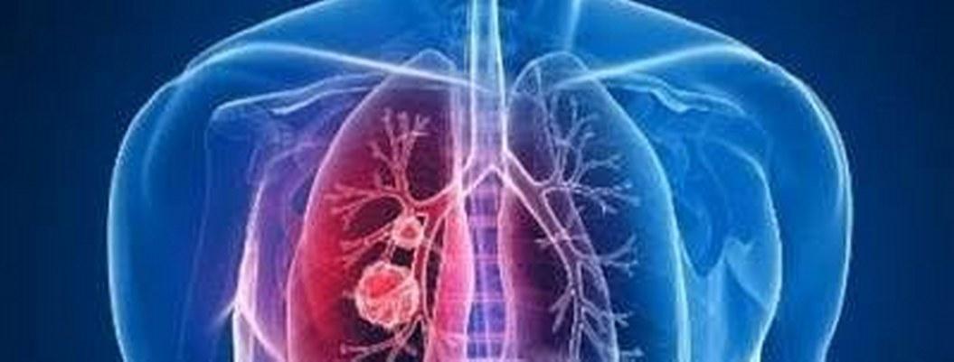 Nuevo tratamiento elimina infección mortal de la fibrosis quística