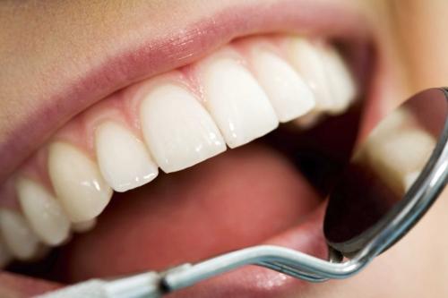 holistic-dental-health