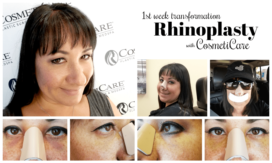 CosmetiCare Rhinoplasty 1st Week Transformation