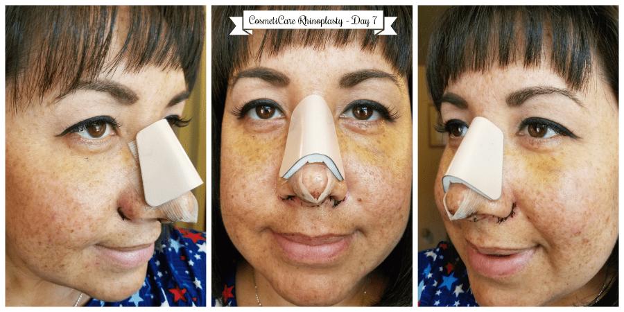 CosmetiCare Rhinoplasty Day 7