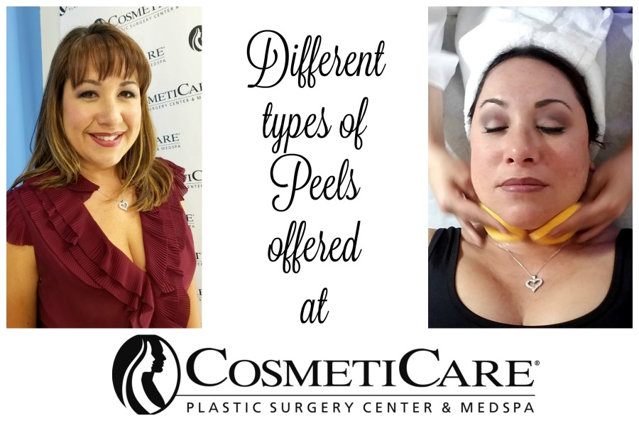 Different Types of Peels offered at CosmetiCare