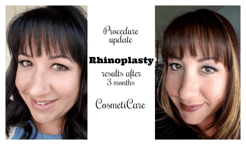 Procedure update rhinoplasty results after 3 months