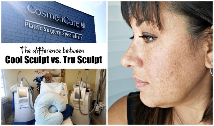 Difference Between Cool Sculpt vs Tru Sculpt