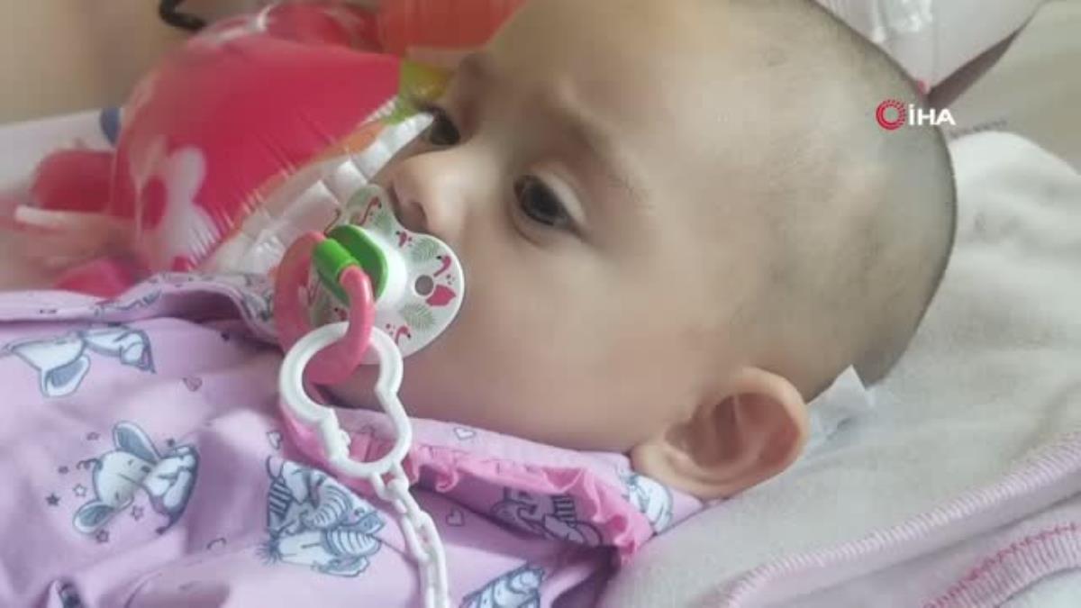 10 aylık bebeğin ensesinden 14 santimetrelik tümör çıkarıldı