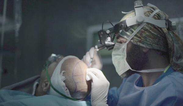 İSTANBUL-Aziz Aksöz: Saç dökülmesi ergenlik öncesinde görülmeye başladı