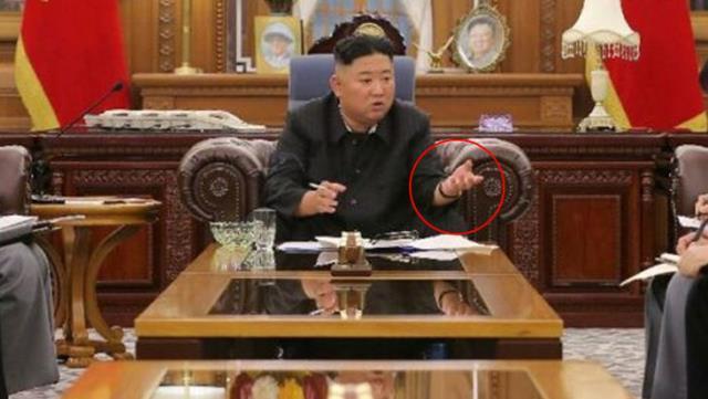 Kilo kaybı yaşayan Kim Jong-un'un sağlık durumu endişelendirdi