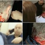 Započela krvava politička jesen? Borku Stefanoviću razbijena glava tokom tribine u Kruševcu!