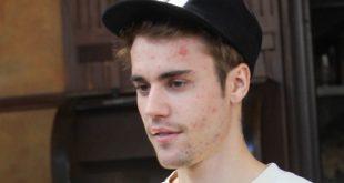 Justin Bieber talks Lyme Disease