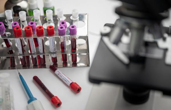 Свежие данные: за сутки в Эстонии коронавирусом заразились 10 человек