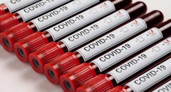 О коронавирусе в Литве сегодня, 30 сентября