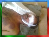 Tortured body of Shaheed Rasool Baksh Mengal