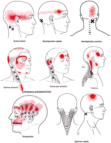 Trigger points for headaches and hangovers