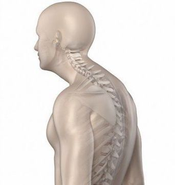Dowager's hump is a risk factor of osteoporosis