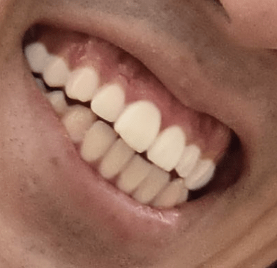 tooth8