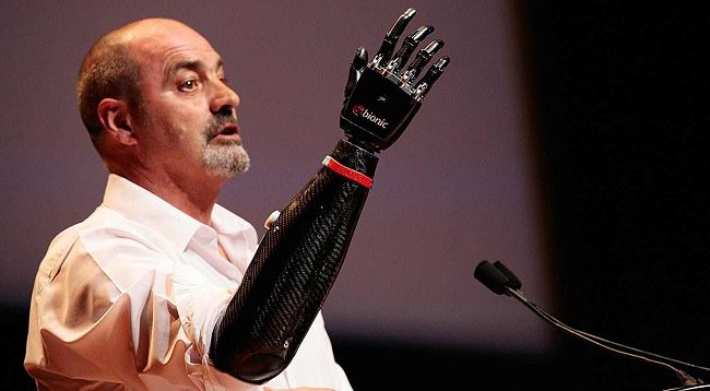 bionic hand of nigel