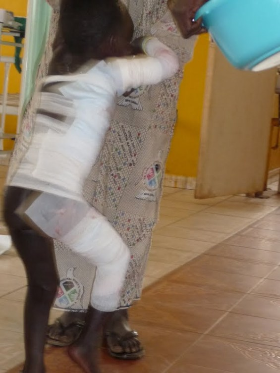 Fatou up and walking - hours after being admitted