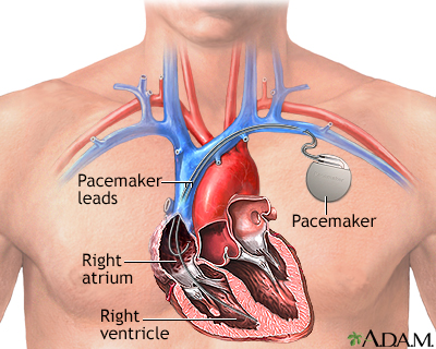Image result for PACEMAKER