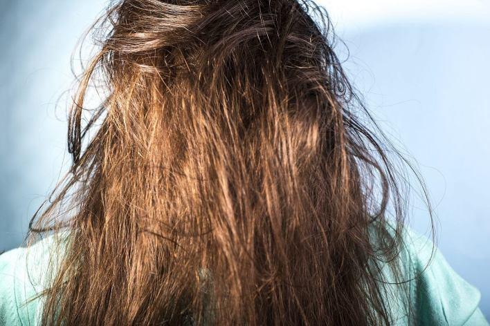 ما هي أسباب ظهور الشعر الدهني؟