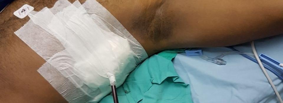 Se recupera herido transcurso huelga