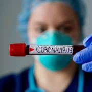 Jueves casi mil infectados y 10 muertos en RD