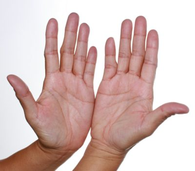 Estela Palaris Orbito - léčivé ruce