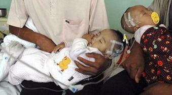 Melamine Poisoned Babies
