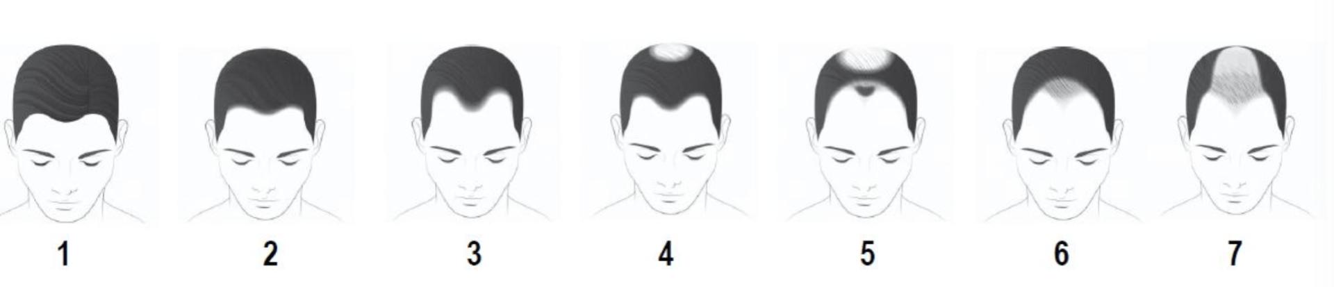 Schritte beim Haarausfall